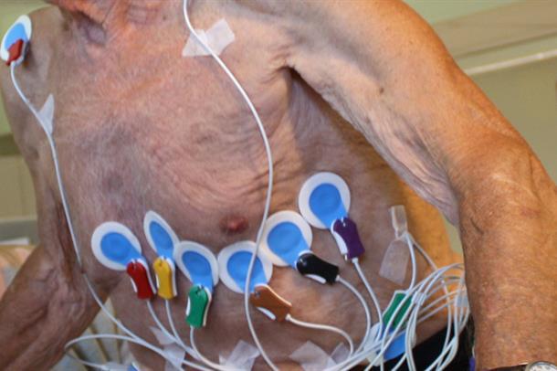 Betydning av alder, kjønn, blodtrykk og kroppsstørrelse for venstre hjertekammers forkortning og pumpefunksjon